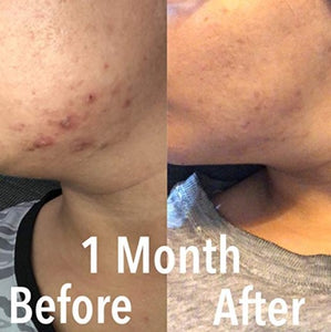 Before & After Photos of RubyLux Red & Blue Light Therapy for Acne