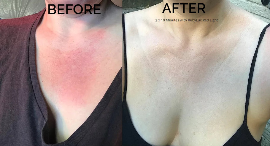 RubyLux Red Light Therapy for Sunburn Before & After