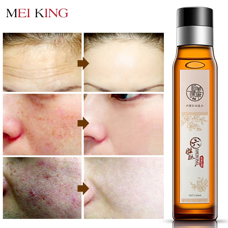 MEIKING Facial Toner Moisturizing Skin Care 100% Natural & Organic Anti Aging Pore Minimizer for Face Nourishes & Hydrates Skin