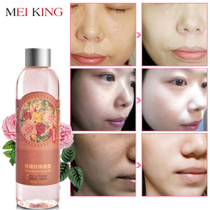 MEIKING Face Toners Rose Pearl Essence Sikncare Shrink Pores Anti-Aging Whitening Moisturizing Oil Control  Skin Care Toner 200g