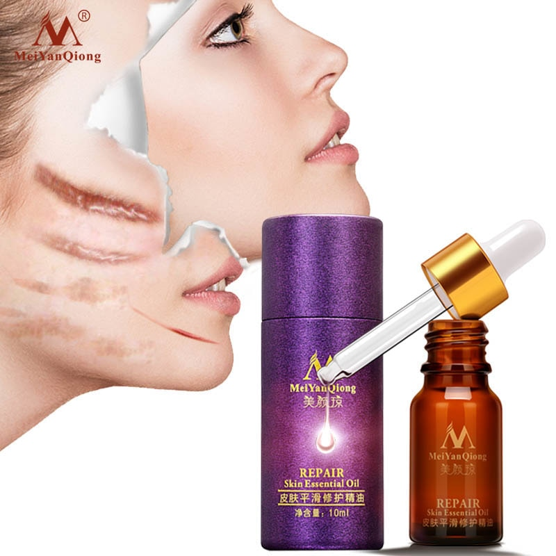 Scar Repair Skin Essential Oil Lavender Essence Skin Care Natural Pure Remove Ance Burn Strentch Marks Scar Removal Treatment