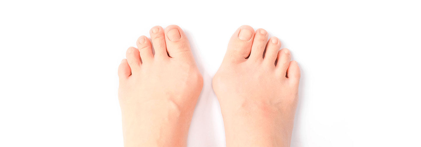 6 Reasons You Shouldn't Ignore Your Bunions - JJslove.com