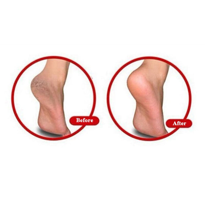 Heels Support Silicone Moisturizing Whitening Socks For Foot Care Protector (1 Pair) - JJslove.com