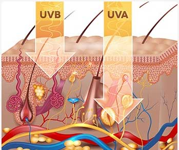 Uv skin damage
