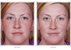 Retinol  PLUS Obagi-C Rx 15% System (Normal skin types)