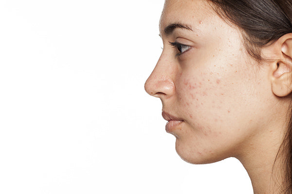 Image of Woman with Acne Prone Skin Suitable for Facial Serum
