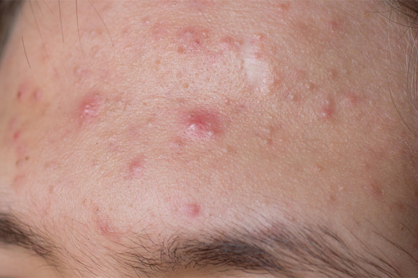 image for anti acne cream with organic perilla seed oil