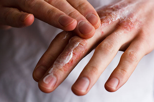 image of irritated hands with skin cream on it