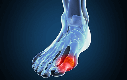 Can a keto diet reduce the risk of gout?