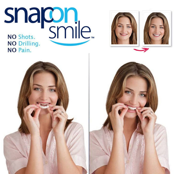 Snap-On Smile Braces