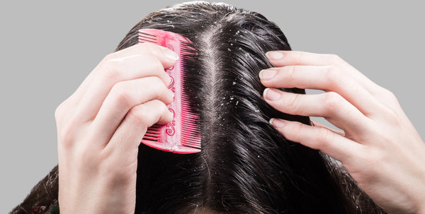 Dandruff can be easily mistaken for dry scalp