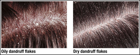 Oily vs Dry Dandruff
