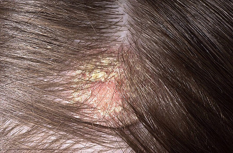 How scarring on scalp leads to hair loss