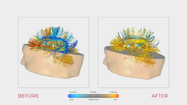 Two side-by-side qEEG brain maps, used to illustrate the difference in communication efficiency between cognitive networks for a person before and after their use of Cognitive Boost Technology from eSmartr.