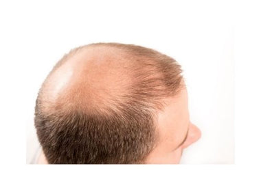 Alopecia Awareness - Androgenetic Alopecia