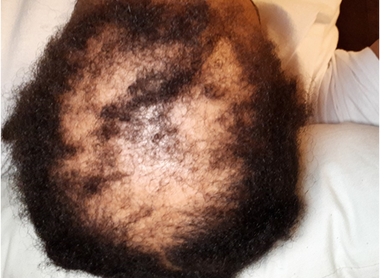 Alopecia Awareness - Lichen Planopilaris