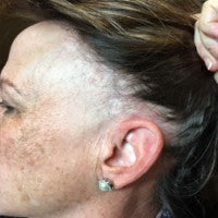 Alopecia Awareness - Frontal Fibrosing Alopecia ( FFA)