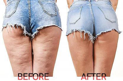 Our Solution to Cellulite