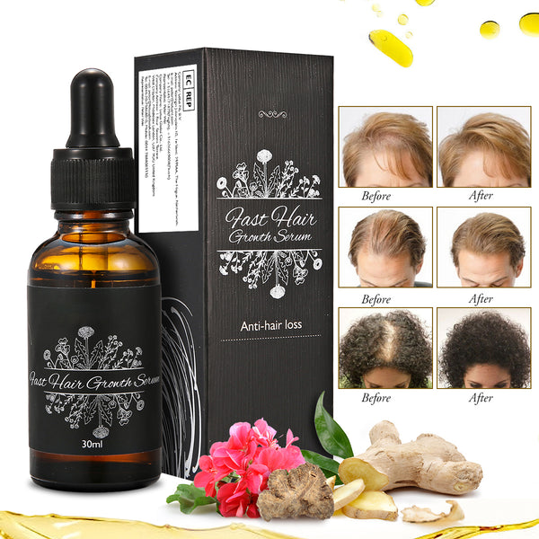 Natural Hair Growth Serum, Anti Hair Loss, Grow Faster, Thicker, More Beautiful, 30ml