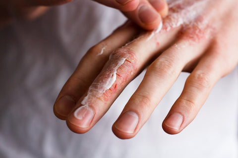 Man's hand with cream on it