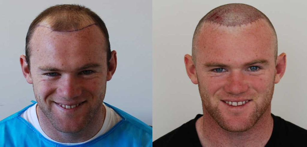 Do Hair Transplants Really Work 10 Facts You Need To Know