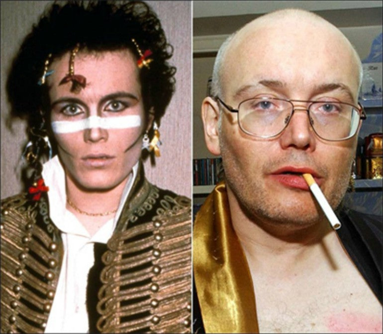 adam ant now and then hair loss for men