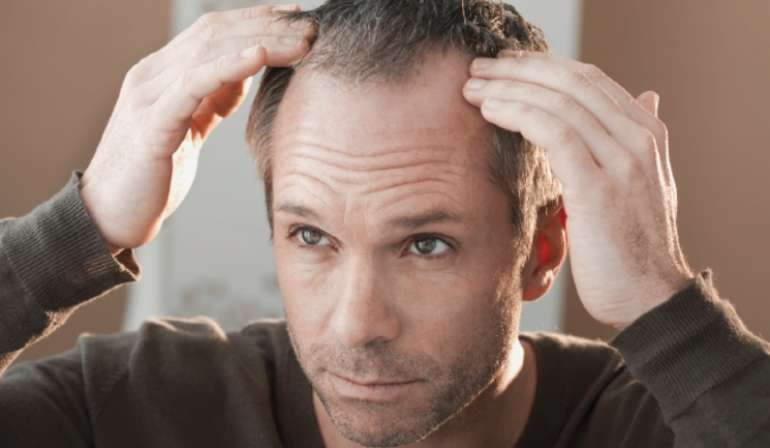 alopecia for men