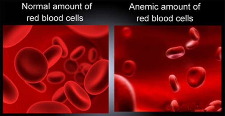 anaemia affects red blood cells