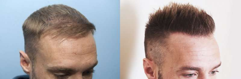 repair receding hairline