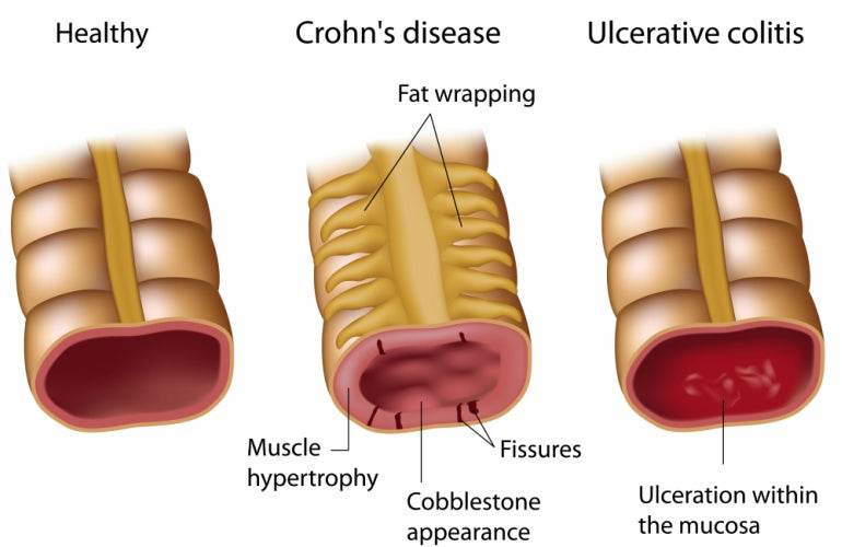 inflammatory bowel diseases diagram