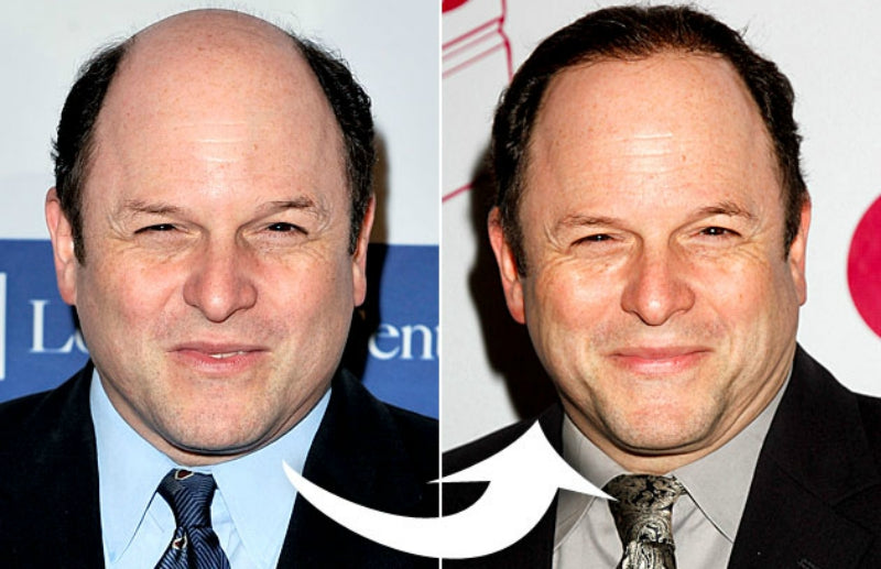 11 Hollywood Celebs with Hair Loss