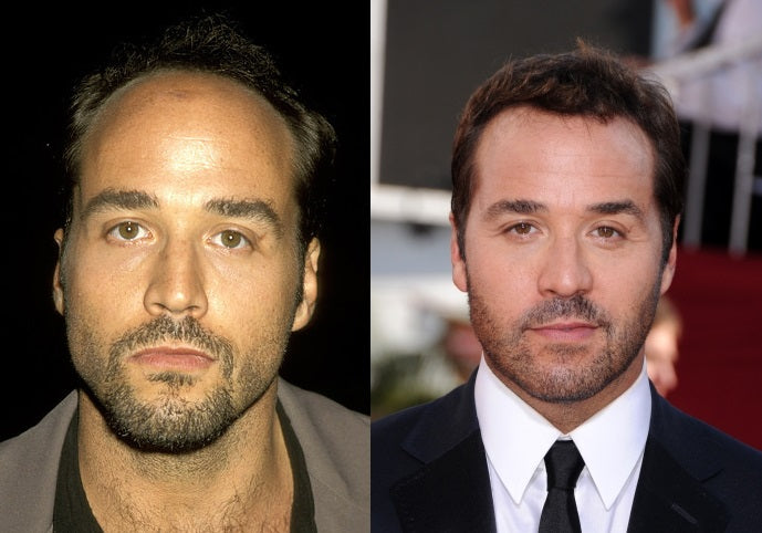 jeremy-piven-before-after-hair-transplant
