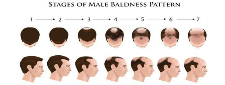 male baldness stages