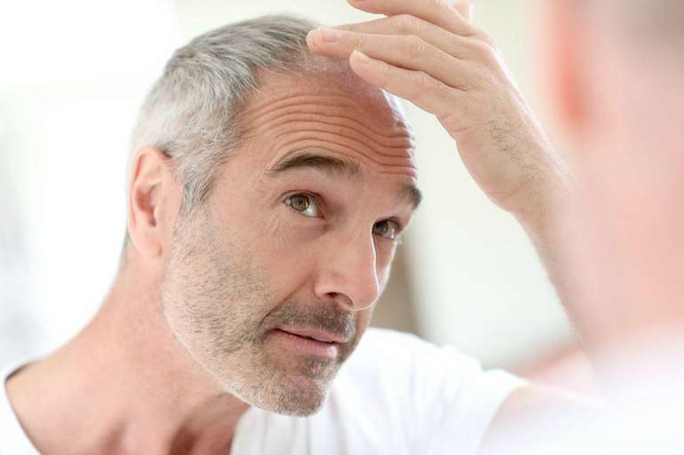 male pattern baldness with age