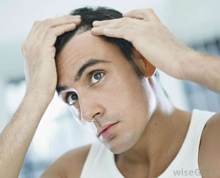 How To Prevent And Regrow A Receding Hairline