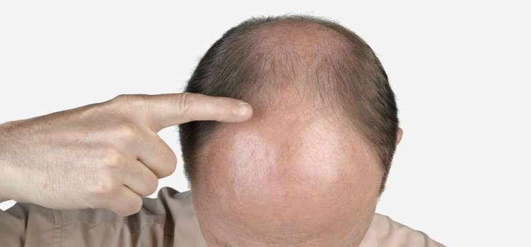 mens dht dihydrotestosterone hair loss