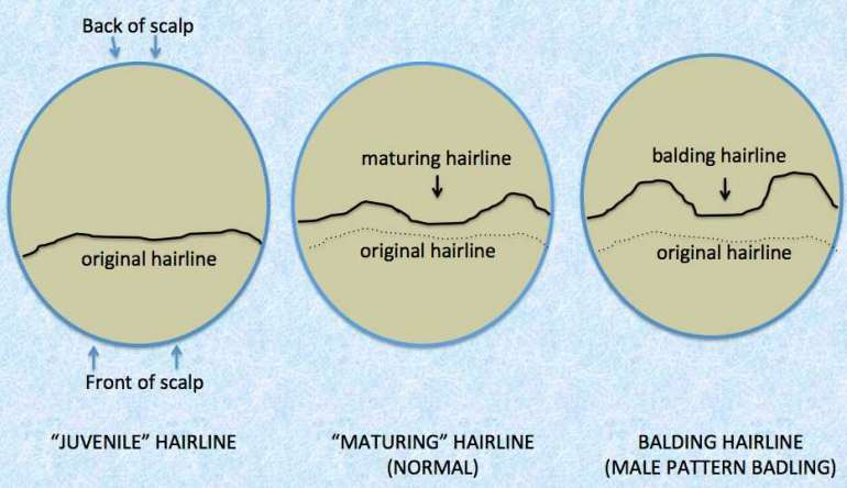 mens mature and balding hairline infographic