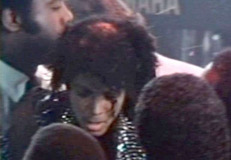 michael jackson bald patch burn