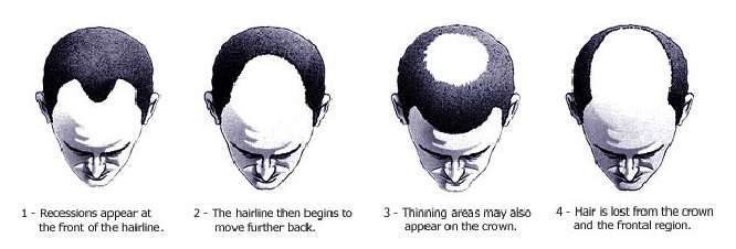 stages of balding