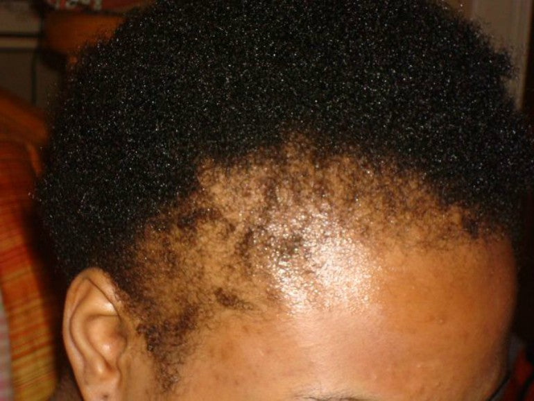 traction alopecia for black men afro hair
