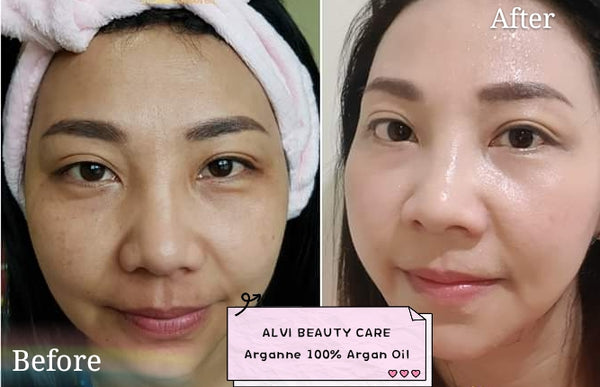 Best Argan Oil for Face, Argan Oil Benefits, Where to Buy Argan Oil, Before and After Photos