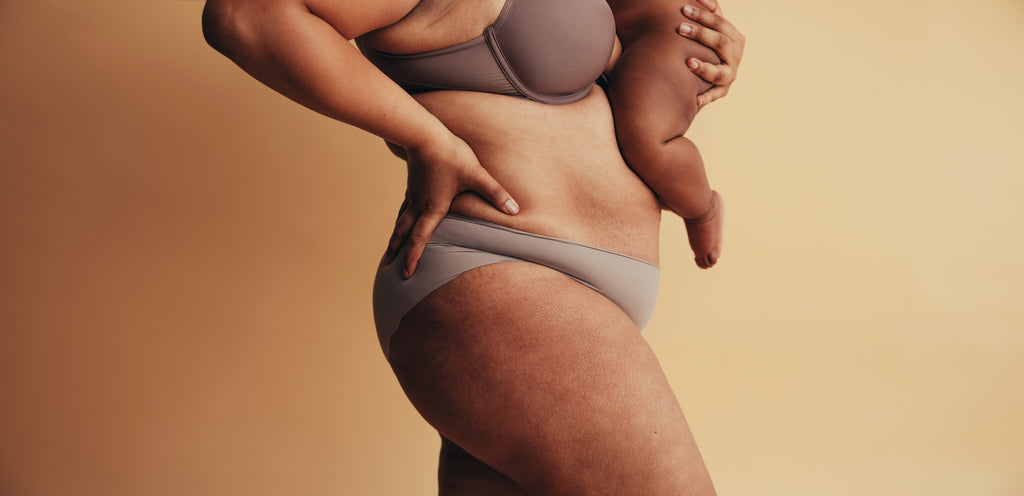 Cellulite is natural and beautiful