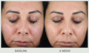 Retinol Treatment Serum 10x