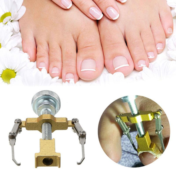 INGROWN NAIL CORRECTOR
