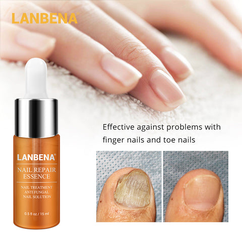 LANBENA Nail Repair Essence Serum Fungal Nail Treatment