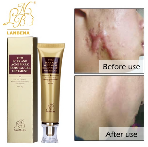 Stretch Marks & Scar Removal Cream