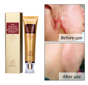 Scar Removal Stretch Marks Burn Scars Bruises Surgical Pimple scar