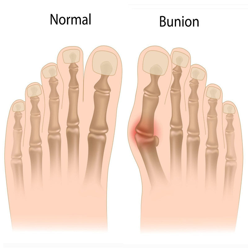 Bunion Corrector Foot Wrap