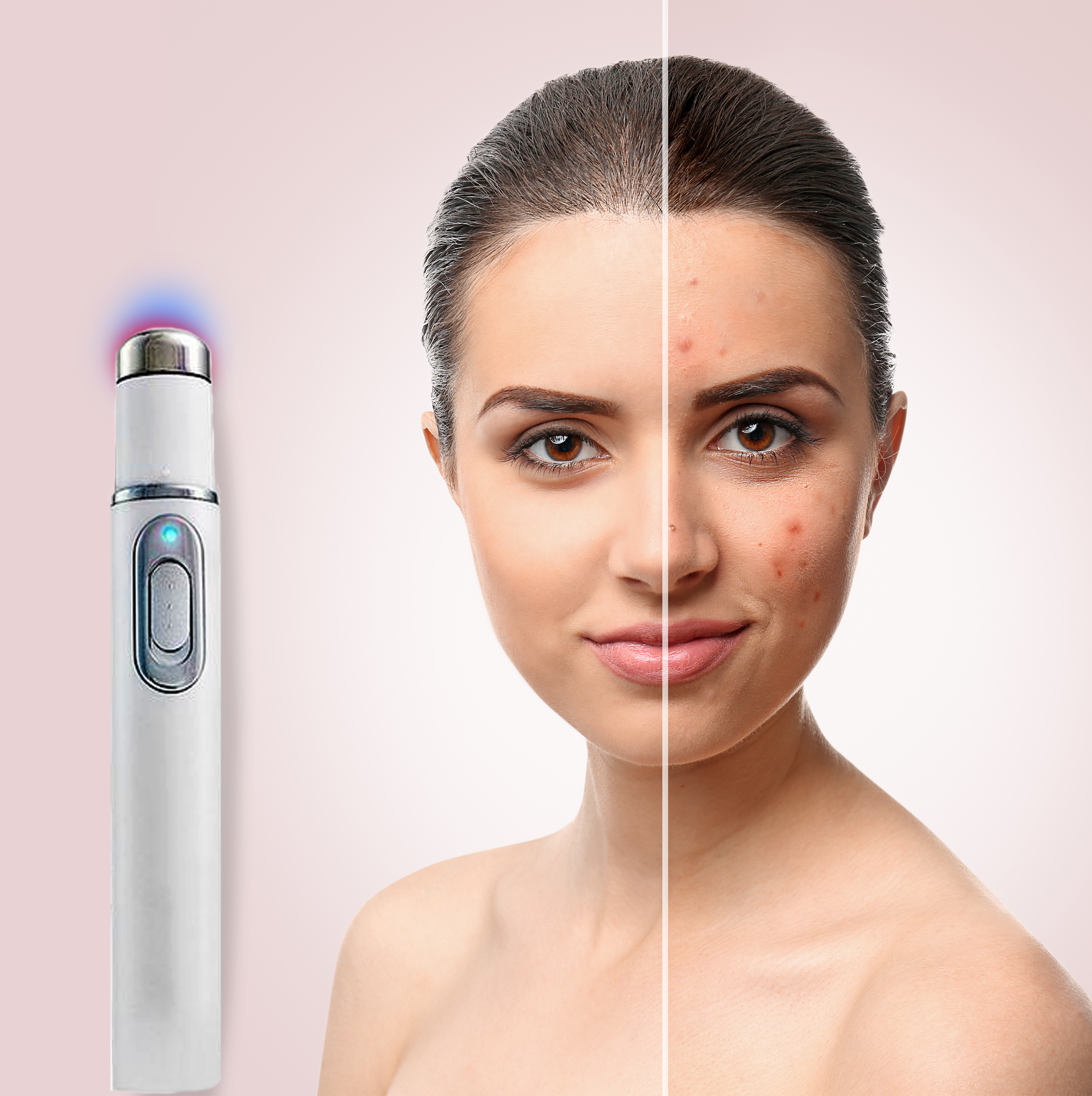 FREE SHIPPING - Skin Light Therapy Pen