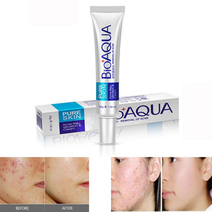 Acne Spots Scar Blemish Marks Remover